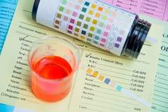 Odczynnika pasek dla Urinalysis, Rutynowy Urinalysis, test moczu ch zdjęcia stock