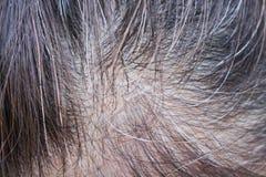Odgórnego widoku kobiety azjatykcia głowa zaczynał iść szarość obraz stock