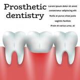 Odontoiatria prostetica 1 Fotografie Stock Libere da Diritti