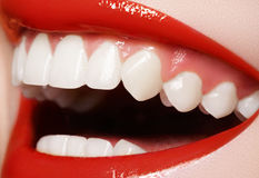 Odontoiatria. Sorriso felice, denti bianchi sani, risata immagine stock