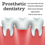 Odontologia protética 1 Fotografia de Stock