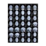 Odosobniony promieniowanie rentgenowskie dziecka głowa zobrazowania rezonans magnetyczny wizerunku móżdżkowy promień x Dzień medy zdjęcia stock