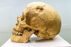 Odsłonięta ludzka czaszka Obraz Royalty Free