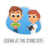 Oedème au concept médical de site de piqûre Illustration de vecteur illustration stock