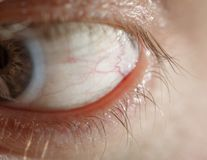 Oeil bleu d'homme avec le verre de contact photo stock