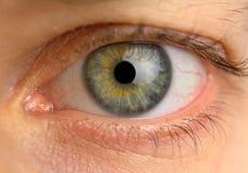 Oeil fatigué d'homme avec des vaisseaux sanguins Image stock