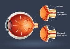 Oeil humain - détachement rétinien Image libre de droits