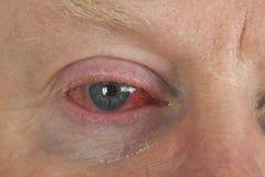 Oeil injecté de sang Image libre de droits