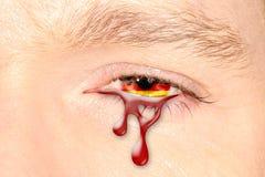 Oeil pleurant de l'Allemagne Photo stock