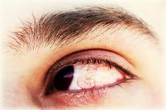 Oeil sanglant photo stock
