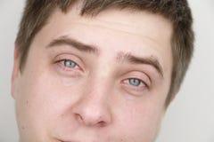 Oftalmologi allergier som river Stående av en man som gråter royaltyfri fotografi