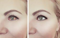 Oftalmologi för tillvägagångssätt för öga för kvinna röd före och efter fotografering för bildbyråer