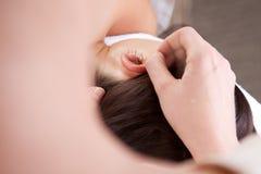Ohr-Akupunktur-Behandlung stockbilder