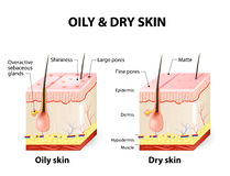 Oily & dry skin Royalty Free Stock Photos