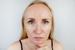 Oily and problem skin. Portrait of a blonde girl with acne, oily skin and pigmentation. Portrait of a blonde girl with acne, oily skin and pigmentation. Oily and stock images