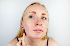 Oily and problem skin. Portrait of a blonde girl with acne, oily skin and pigmentation. Portrait of a blonde girl with acne, oily skin and pigmentation. Oily and stock photos
