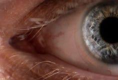 Ojo con la lente de contacto Fotos de archivo libres de regalías