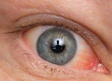 Ojo crónico de la conjuntivitis con un iris y un pus rojos Imagen de archivo