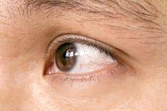 Ojo del alumno de la conjuntivitis Imagenes de archivo