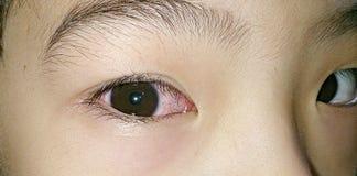 Ojo derecho rosado Foto de archivo libre de regalías
