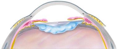 Ojo - paso 6 de la cirugía de la catarata Imagen de archivo libre de regalías