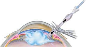 Ojo - paso 4 de la cirugía de la catarata Imagenes de archivo