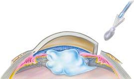 Ojo - paso 5 de la cirugía de la catarata Fotografía de archivo libre de regalías