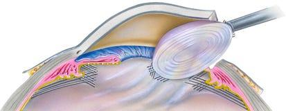 Ojo - paso 1 de la cirugía de la catarata Fotos de archivo