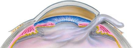 Ojo - paso 2 de la cirugía de la catarata Imagen de archivo