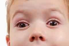 Ojo rojo con la infección, virus de la conjuntivitis del niño fotografía de archivo