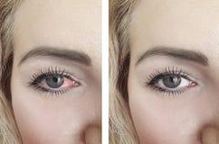 Ojo rojo de la mujer antes y después de la oftalmología de los procedimientos del problema de la conjuntivitis imagenes de archivo