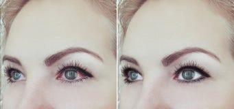 Ojo rojo de la mujer antes y después de la oftalmología de los procedimientos del problema de la conjuntivitis de la visión imágenes de archivo libres de regalías