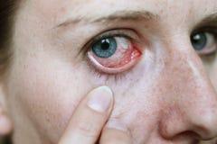 Ojo rojo después del ataque del hayfever imagenes de archivo