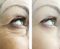 ojos de las arrugas de una mujer, antes después de resultados de tratamientos de los procedimientos del rejuvenecimiento de los p imagen de archivo