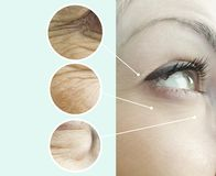 Ojos de las arrugas de una mujer que envejecen el collage de elevación del retiro de la regeneración antes y después, procedimien fotografía de archivo
