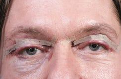 Ojos después de la cirugía del párpado Imágenes de archivo libres de regalías