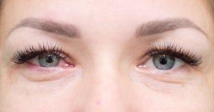 Ojos sanos e irritados Imágenes de archivo libres de regalías