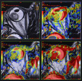 Oko bolak - czerniak, MRI Fotografia Royalty Free