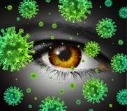 Oko infekcja Obrazy Stock