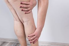 The varicose veins on a legs of woman. The old age and sick of a woman. Varicose veins on a legs of woman. The varicosity, spider veins, edema, illness concept stock photography