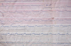 Old ECG. Photo of the old ECG. Made in the 60s Stock Images