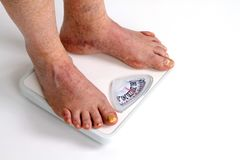 Old Feet On Scale. Old man with toe fungus weighs himself with feet on bathroom scale Royalty Free Stock Photography