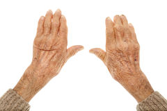 Old hands with artritis stock images