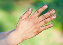 Old homeless man's dirty hands. Old homeless man's dirty messy hands Royalty Free Stock Photos