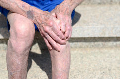 Old man with gnarled hands clutching his knee Royalty Free Stock Image