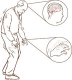 Old man with Parkinson symptoms difficult walking. A vector illustration of Old man with Parkinson symptoms difficult walking vector illustration