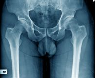Pelvic bone in blue tone. Old man x-ray, pelvic bone in blue tone royalty free stock image