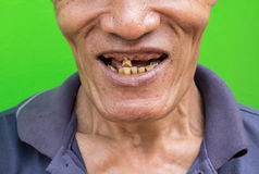 Old man smiling showing his teeth unattractive on green background. Royalty Free Stock Photo