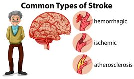 And Old Man and Types of Stroke vector illustration