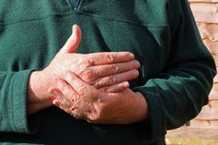 Old mans right hand. Pain, arthritis. An old mans hand. The man is holding his right hand because he is in pain. Either injured or arthritis royalty free stock photography